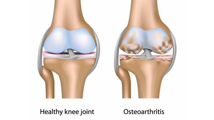 Ayurveda-or-Osteoarthritis
