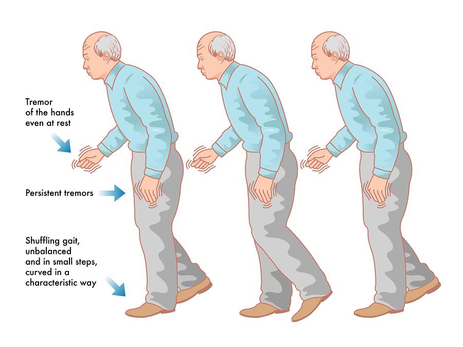 Ayurveda Parkinson's