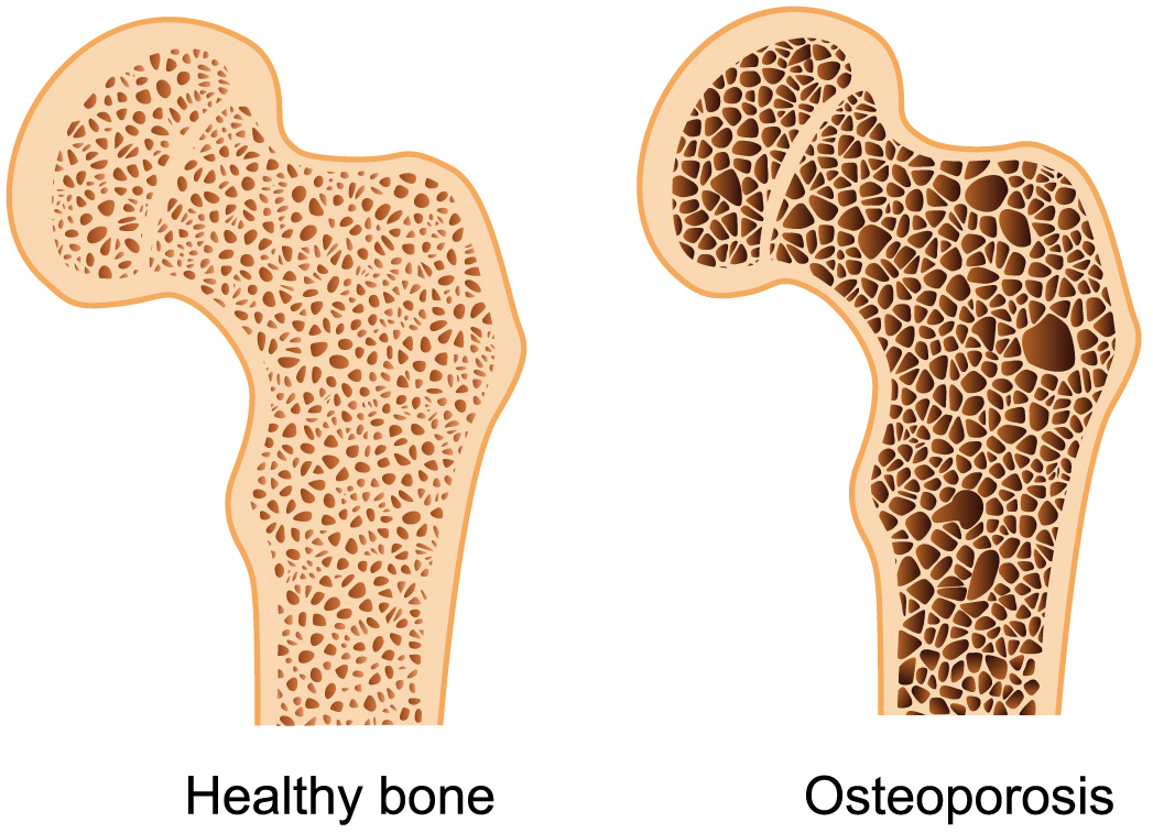 Osteoporosis and Ayurveda