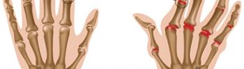 Rheumatoid Arthritis Ayurveda