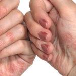 Manage Psoriasis with Ayurveda